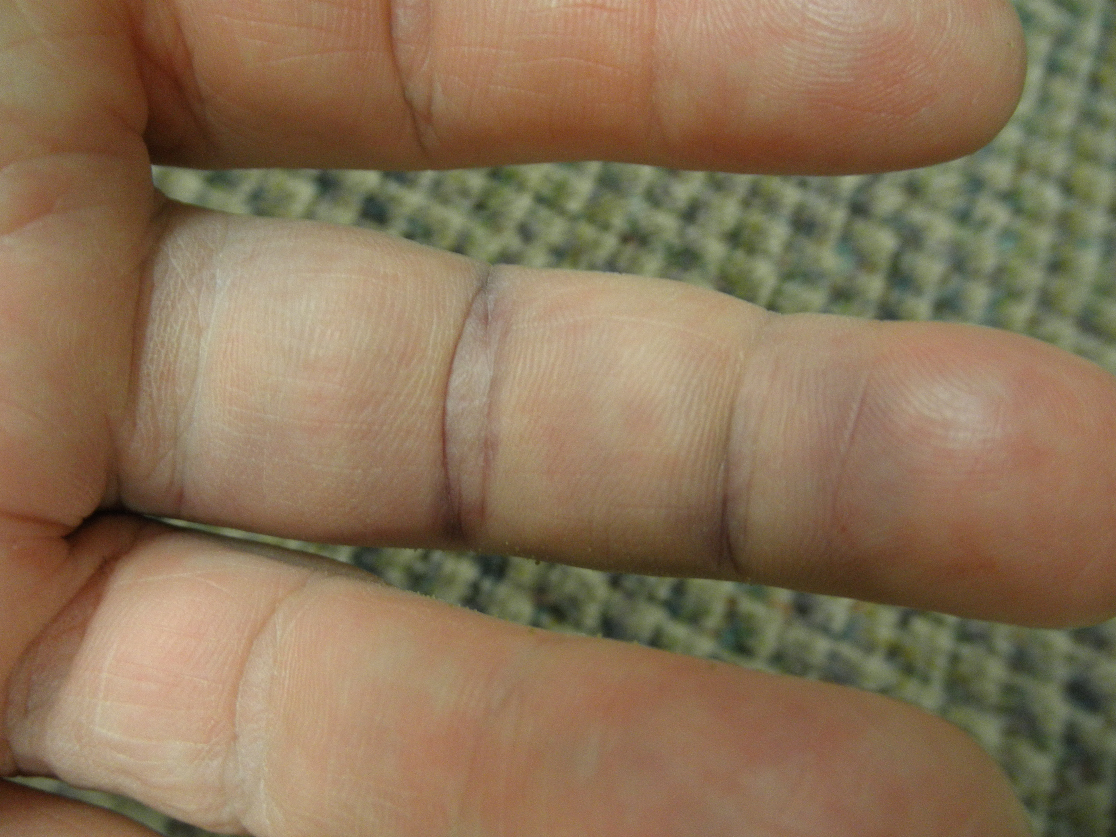 What can tell the picture on your finger
